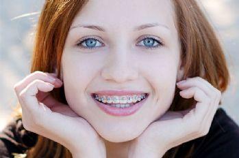 Diş çürüklerini önlemenin 12 yolu