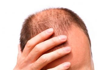 Demir eksikliği saçları döküyor !