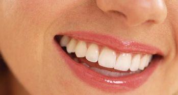 Diş rengi problemine dikkat