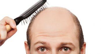 Saç seyrelmesine dikkat