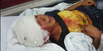 14 yaşındaki çocuk tüfekle oynarken arkadaşını kafasından vurdu