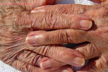Yaşlanma bir hastalık mıdır?